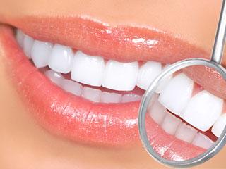 歯のキレイ